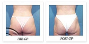 phoca_thumb_l_hodnett-liposuction-001
