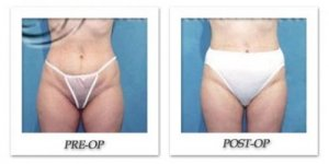 phoca_thumb_l_hodnett-liposuction-002