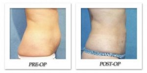 phoca_thumb_l_hodnett-liposuction-003