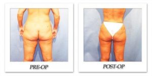 phoca_thumb_l_hodnett-liposuction-004