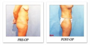 phoca_thumb_l_hodnett-liposuction-005
