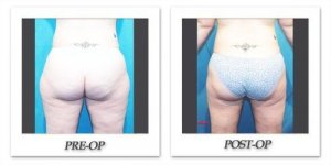 phoca_thumb_l_hodnett-liposuction-006