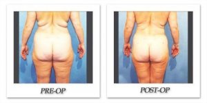 phoca_thumb_l_hodnett-liposuction-009