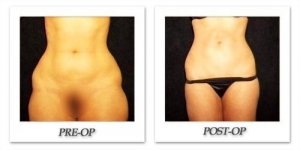 phoca_thumb_l_hodnett-liposuction-010