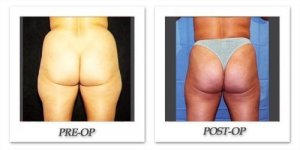 phoca_thumb_l_hodnett-liposuction-011