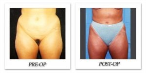 phoca_thumb_l_hodnett-liposuction-012