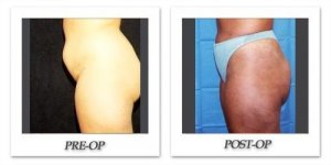 phoca_thumb_l_hodnett-liposuction-013