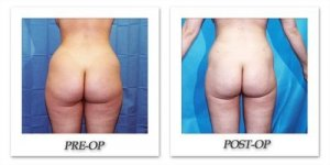 phoca_thumb_l_hodnett-liposuction-014