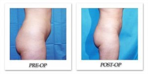 phoca_thumb_l_hodnett-liposuction-015