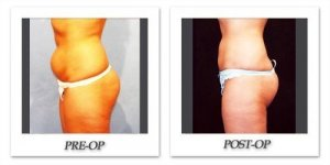 phoca_thumb_l_hodnett-liposuction-016