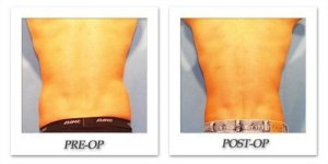 phoca_thumb_l_hodnett-liposuction-017