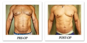 phoca_thumb_l_liposuction-before-after-015