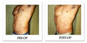 phoca_thumb_l_liposuction-before-after-016