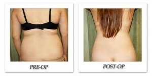phoca_thumb_l_liposuction-before-after-017