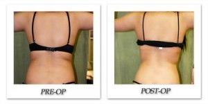 phoca_thumb_l_liposuction-before-after-018