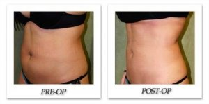 phoca_thumb_l_liposuction-before-after-019