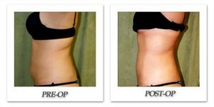 phoca_thumb_l_liposuction-before-after-020