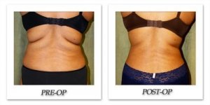 phoca_thumb_l_liposuction-before-after-021