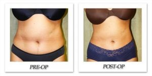 phoca_thumb_l_liposuction-before-after-022