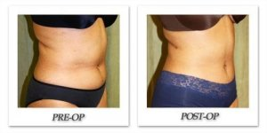 phoca_thumb_l_liposuction-before-after-023