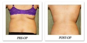 phoca_thumb_l_liposuction-before-after-024