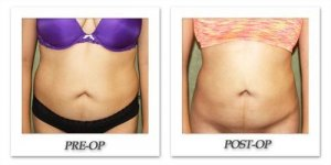 phoca_thumb_l_liposuction-before-after-025