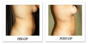phoca_thumb_l_liposuction-before-after-026