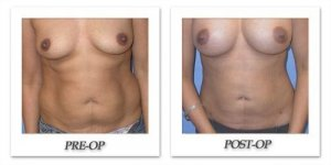 phoca_thumb_l_mandris-liposuction-001
