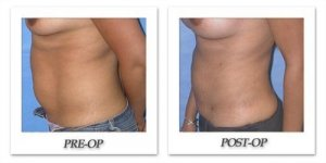 phoca_thumb_l_mandris-liposuction-002