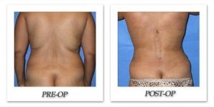 phoca_thumb_l_mandris-liposuction-003