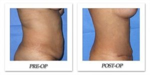phoca_thumb_l_mandris-liposuction-004