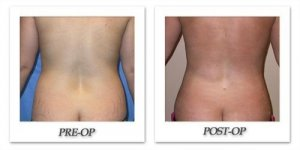 phoca_thumb_l_mandris-liposuction-005