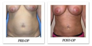 phoca_thumb_l_mandris-liposuction-006