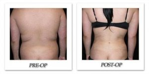 phoca_thumb_l_mandris-liposuction-008