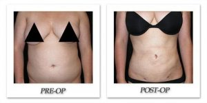 phoca_thumb_l_mandris-liposuction-009