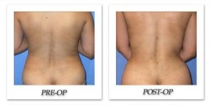 phoca_thumb_l_mandris-liposuction-010