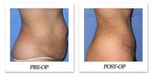 phoca_thumb_l_mandris-liposuction-011