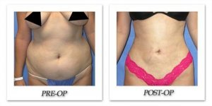 phoca_thumb_l_mandris-liposuction-013
