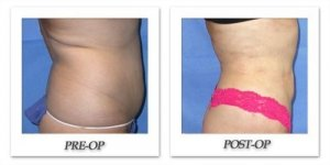 phoca_thumb_l_mandris-liposuction-014