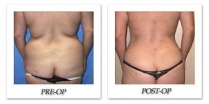phoca_thumb_l_mandris-liposuction-015
