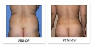 phoca_thumb_l_mandris-liposuction-016