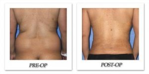 phoca_thumb_l_mandris-liposuction-017