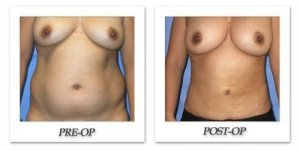 phoca_thumb_l_mandris-liposuction-018