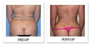 phoca_thumb_l_mandris-liposuction-019
