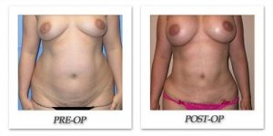 phoca_thumb_l_mandris-liposuction-020