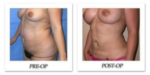 phoca_thumb_l_mandris-liposuction-021