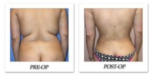 phoca_thumb_l_mandris-liposuction-022