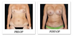 phoca_thumb_l_mandris-liposuction-024