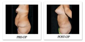 phoca_thumb_l_mandris-liposuction-025