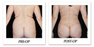 phoca_thumb_l_mandris-liposuction-026